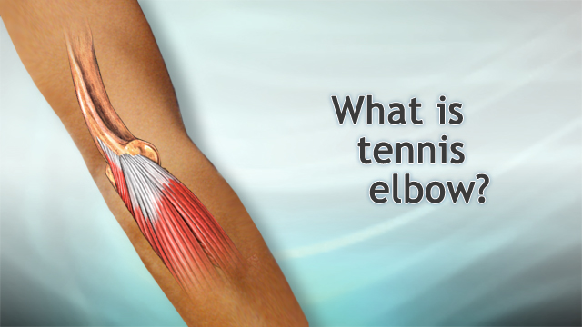 <div class=media-desc><strong>What is tennis elbow?</strong><p>I'm Dr. Alan Greene and let's talk for a moment about tennis elbow. Tennis elbow is a kind of tendonitis. It's an inflammation and injury to the tendons usually on the outside of the elbow. Tendons are those fibrous bands that connect the muscle into the bone. When those tendons get damaged, as they often can in racquet sports or also in baseball, sometimes over using a screwdriver, a lot of ways you can do it, we typically call it tennis elbow or tendonitis. How do you prevent it? When you are playing tennis one of the most important things is to avoid putting too much stress on that tendon on the outside of the elbow. The problem usually comes with your backhand. So if you do a two-handed backhand, you can greatly reduce the stress. You can also reduce the stress by using a racquet that has the right size grip for your hand. Don't play with somebody else's racquet very often. And make sure the strings are not over tightened. It puts too much stress when the ball hits suddenly with over tightened strings. If you have a tendency to get tennis elbow, it could also be very useful immediately after playing to ice the elbow and take some ibuprofen to prevent swelling and inflammation. Now, if you do develop tennis elbow how do you treat it? It comes down to a combination of rest, ice, compression, and elevation. In terms of rest, you want to completely rest your elbow for at least a couple of days and really for as long as it is still sore. In terms of ice that first day, ice very frequently. It's great even every 15 minutes to have an ice pack on there briefly and for the next couple of days, at least every 3 or 4 hours if you can. It will help speed the healing. Wearing a bandage on there to help support the elbow is good. It can also be good when you are playing tennis to help prevent tennis elbow. The wrap on there can help support the elbow and keep it warm and make it less likely to injure. And finally