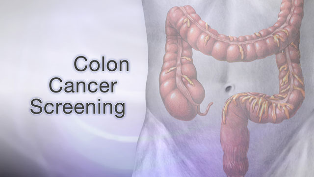<div class=media-desc><strong>Colon cancer screening</strong><p>Colon cancer is one of the leading causes of cancer-related deaths in the United States. The good news is that early diagnosis through preventive screening often leads to a complete cure. Colorectal cancer starts in the large intestine, also known as the colon. Nearly all colon cancers begin as noncancerous, or benign, polyps, which slowly develop into cancer. Screening can detect these polyps and early cancers. The great thing is that we can remove polyps years before cancer even has a chance to develop! Your doctor can use several tools to screen for cancer. The first step is a stool test. This test checks your bowel movements for blood that you may not even be able to see in your stool. Polyps in the colon and small cancers can bleed tiny amounts of blood that you can't see with the naked eye. The most common method is called the fecal occult blood test. A second method is called a sigmoidoscopy exam. This test uses a flexible scope to look at the lower portion of your colon. But, because it looks only at the last one-third of the large intestine, it may miss some cancers. That's why this test is usually done along with a stool test. A colonoscopy is similar to sigmoidoscopy, but it can see the entire colon. That's why we usually do colonoscopies over sigmoidoscopies nowadays. You'll usually be mildly sedated during this test. Occasionally, your doctor may recommend, as an alternative, a double-contrast barium enema--which is a special x-ray of the large intestine, or a virtual colonoscopy, which uses a CAT scan and computer software to create a 3-D image of your large intestine. So, who should be screened for colon cancer? Well, beginning at age 50, men and women should have a screening test. People with an average risk of colon cancer should have a colonoscopy every 10 years, a double-contrast barium enema every 5 years, or a fecal occult blood test every year. Additional options are sigmoidoscopy 