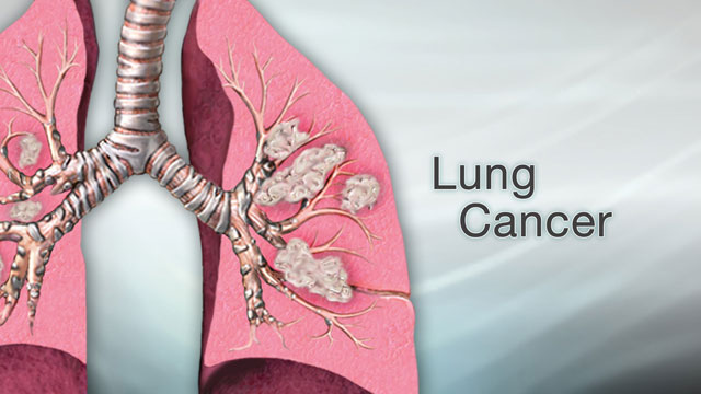 <div class=media-desc><strong>Lung cancer</strong><p>Cancer can affect just about any part of the body, from the colon to the pancreas. Some cancers grow quickly, while others grow more slowly and are easier to treat. But of all the different cancers out there, one of the deadliest is lung cancer. Let's talk today about lung cancer. Cancer starts when cells begin to grow uncontrollably and form tumors. In the case of lung cancer, the tumors start in the lungs. Sometimes cancer starts somewhere else in the body and then spreads to the lungs. In that case, it's called metastatic cancer to the lung. Metastatic means disease that has spread. There are two types of lung cancer. The most common, and slower-growing form is non-small cell lung cancer. The other, faster-growing form is called small cell lung cancer. The most common way to get lung cancer is to smoke cigarettes. The more cigarettes you smoke and the earlier you start smoking, the greater your risk is. Even being around someone who smokes and breathing in the secondhand smoke from their cigarettes increases your risk of getting lung cancer. Even though smoking makes you much more likely to get lung cancer, you don't have to smoke or be exposed to smoke to get the disease. Some people who have lung cancer never lit up a cigarette in their life. They have been exposed to cancer-causing substances like asbestos, diesel fumes, arsenic, radiation, or radon gas. Or, they may not have had any known lung cancer risks. The most common signs of lung cancer are a cough that won't go away, chest pain, shortness of breath, weight loss, and fatigue. But just because you have these symptoms it doesn't mean that you have don't have lung cancer. These can also be signs of other conditions, like asthma or a respiratory infection. If you do have these symptoms, see your doctor. A chest x-ray, MRI, or CT scan can view the inside of your lungs to look for signs of cancer or other diseases. What happens if you do have lung cancer? Doctors divide lung cancer into stages. The higher the stage, the more the cancer has spread. For example, a stage 1 cancer is small and hasn't spread outside of the lungs. A stage 4 cancer has spread to the other organs, such as the kidneys or brain. Depending upon the type and stage of your lung cancer, you may need surgery to remove part or all of your lung. Or, your doctor may recommend radiation or chemotherapy to kill cancer cells. If you have lung cancer, how well you do depends upon the stage of your disease and the type of lung cancer that you have. Early-stage cancers have the highest survival and cure rates. Late-stage cancers are harder to treat. Because lung cancer can be so deadly, prevention is key. The most important that thing you can do is to stop smoking, and avoid being around anyone who does smoke.</p></div>