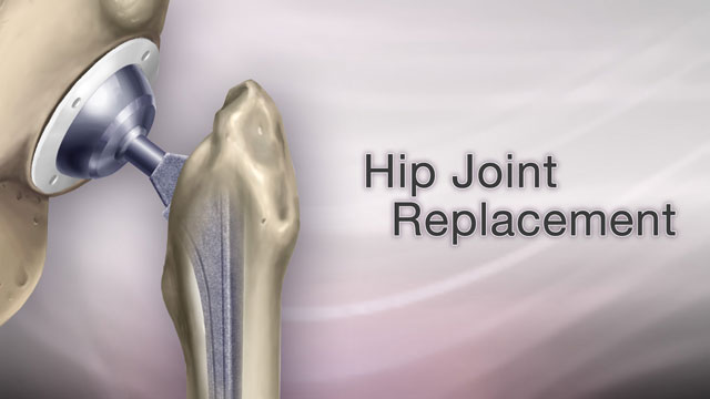 <div class=media-desc><strong>Hip joint replacement</strong><p>Your hip is hurting so bad, you can't sleep. It's hard to bathe, to clean, make it to the mailbox or shop at the mall. You may have severe arthritis in your hip, and there's a good chance you need a hip replacement. Hip replacements are usually done in people age 60 and older. If you need one, you probably have severe arthritis that limits your daily life, or perhaps have a hip fracture. Your hip joint is made up of two parts, the hip socket and the upper end of the thigh bone. One or both parts may be replaced during surgery. Your new hip will probably have a socket made of strong metal, a liner that fits inside the socket, usually plastic, a metal or ceramic ball to replace the round head of your thigh bone, and a metal stem attached to the thigh bone to make your joint more stable. So, how is the hip replacement procedure done? Well you won't not feel any pain during surgery because you will have medicine to make you fall asleep. The surgeon will cut and remove the head of your thigh bone and clean out your hip socket, removing cartilage and damaged or arthritic bone. The surgeon will put the new hip socket in place, insert the metal stem into your thigh bone, and place the ball for a new joint. Cement will probably hold the new joint in place. The surgery can take several hours. After the surgery, you will probably stay in the hospital for three to five days. As soon as the first day after surgery, you will be asked to start moving and walking around with a walker, crutches, or a cane. You will need physical therapy to strengthen your new joint for up to several weeks after your operation. Some people need a short stay in a rehabilitation center after they leave the hospital. At the rehab center, you will learn how to safely do your daily activities on your own. Your new hip should allow you to resume your daily activities once you've learned to move around on your own. In the long run, over 20 years