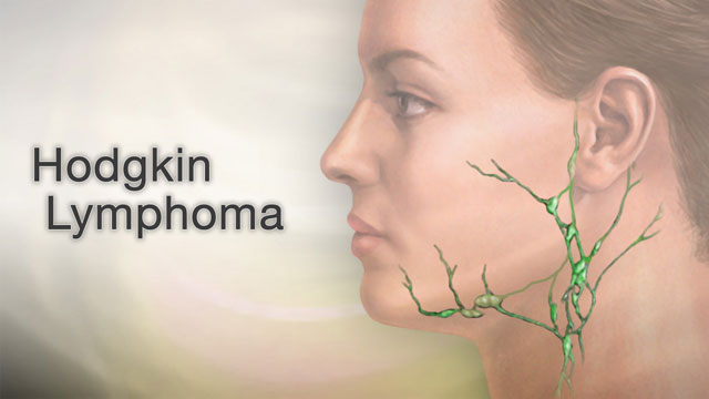 <div class=media-desc><strong>Hodgkin lymphoma</strong><p>Did you ever touch your neck and feel a bump on one or both sides? Usually, it's just a swollen gland or lymph node that's caused by a cold or other infection. But occasionally, swollen lymph nodes can be a sign of cancer, perhaps a cancer called Hodgkin's lymphoma.These are your lymph nodes. You'll find them not only on your neck, but in your armpits and groin too. They're a part of your body's normal defense system, which protects you against invading viruses and bacteria. Hodgkin's lymphoma is a type of cancer that starts inside the lymph nodes. What causes Hodgkin's lymphoma isn't known, but having the Epstein-Barr virus or HIV may increase your risk.So, what are the signs of Hodgkin's lymphoma?In addition to having swollen lymph nodes, you may feel tired and have no appetite. Some people wake up in the middle of the night soaked in sweat. That's called night sweats. Remember, though, that these symptoms can occur with many different conditions. So if you have them, don't panic. But do see your doctor, who can tell you for sure what's causing your symptoms.If your doctor suspects that you have Hodgkin's lymphoma, your doctor will probably cut and remove a small piece of tissue from your lymph node, called a biopsy, and the samples will be sent to a lab to look for cancer cells. If cancer is diagnosed, other tests are used to stage it, in other words, to see whether the disease has spread, and if so, how far it's spread. That helps your doctor find the right treatment.If you have Hodgkin's lymphoma, most often the treatment involves radiation therapy, chemotherapy, or a combination of both. People who don't respond to these treatments sometimes need a bone marrow transplant.While you're being treated for Hodgkin's lymphoma, you may need other therapies to help you feel better. That might include antibiotics to fight an infection or a blood transfusion to add red blood cells when they're low.Getting diagnos