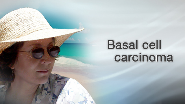 <div class=media-desc><strong>Basal cell carcinoma</strong><p>If you're like many Americans, you've spent hours in the sun trying to get the perfect, golden tan. But tanning has its downsides, including an increased risk of skin cancers like basal cell carcinoma.Most people who get skin cancer have the basal cell carcinoma form. The good news is that this type of skin cancer grows very slowly compared to the more dangerous melanoma type. The bad news is, it's still cancer.You're more likely to get basal cell carcinoma on the parts of your skin that are exposed to the sun, like your scalp, if you don't wear a hat when you go outside. People who are fair-skinned, with blonde hair and blue eyes are also at greater risk for skin cancer than those with darker skin.To find out if you may have basal cell carcinoma, first, do a skin check. Look in a mirror and check your body for any bumps that look white, pink, or brown, or that have crusted over and bleed but don't heal. If you spot anything unusual on your skin, see your dermatologist. The doctor can perform a biopsy removing some or all of the growth and sending it to a lab where it can be checked for cancer.Basal cell carcinoma doesn't grow very quickly, and it's not likely to spread. Your doctor should be able to remove the bumps by cutting, scraping, or freezing it off. Once the cancer is removed, there's a good chance you'll be cured. But because skin cancer can come back, you always want to keep a close eye on your skin, and call your doctor if you notice any new growths. A lot of diseases are beyond your control, but skin cancer is one condition you do have some control over. The best way to avoid getting it is to stop sun worshipping. Seek shade during the hours when the sun is strongest, usually from 10 a.m. to 4 p.m. and especially during the summer months. If you do have to be outside then, slather on a thick layer of sunscreen with an SPF of at least 30, one that protects against both UVA and UVB rays. Reappl
