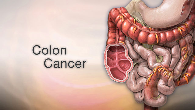 <div class=media-desc><strong>Colon cancer</strong><p>Colon cancer may not be talked about as often as other cancers, like breast cancer, prostate or lung cancer, but it's actually one of the leading causes of cancer deaths. It is for this reason it's very important to stay on top of your colon health. The colon is your large intestine, the long, upside-down U-shaped tube that is toward the end of the line for getting rid of waste in your body. Colon cancer can start in the lining of the intestine, or at the end of it, called the rectum. Let's try to better understand Colon cancer. You're more likely to get the disease if you're over age 60, especially if you have a family history of colon cancer, inflammatory bowel disease, diabetes, or obesity. Smoking cigarettes and drinking alcohol has also been found to increase your risk of getting colon cancer. Although the data are not consistent, eating red meat or processed meats may increase the risks of colon cancer as well. Lean, unprocessed red meat, may be associated with less risk. If you have symptoms, they may include pain in your abdomen, blood in your stool, weight loss, or diarrhea. But hopefully, you'll get diagnosed before you have any symptoms, during a regular screening test like a colonoscopy or sigmoidoscopy. These tests use special instruments to see inside your colon and rectum to look for any cancerous or pre-cancerous growths, called polyps. If your doctor discovers that you do have colon cancer, unfortunately, you'll need to have a few more tests, including scans of your abdomen to find out whether the cancer has spread, and if so, where in your body it's located. So, how is colon cancer treated? That really depends on how aggressive your cancer is and how far it's spread, but usually colon cancer is removed with surgery, or killed with chemotherapy or radiation. You may get one, or a combination, of these treatments. Colon cancer is one of the more treatable cancers. You can be cured, especially if you catch it early. Spotting colon cancer when it's still treatable is up to you. If you're over age 50, you need to get screened with a colonoscopy. During this test, your doctor can find, and remove colon polyps before they have a chance to turn cancerous. And, regular physical activity and eating at least some fruits and vegetables daily, perhaps with unprocessed wheat bran, can help prevent it. If you want to prevent colon cancer, you'll also want to avoid processed and charred red meats, and smoking, and excess calories, and alcohol.</p></div>