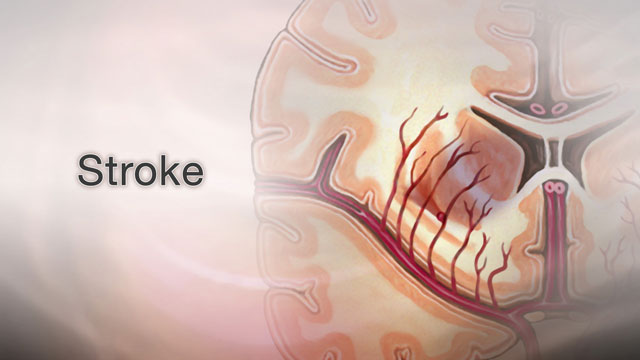 <div class=media-desc><strong>Stroke</strong><p>When blood flow to an area of your brain stops, it's serious. It's called a stroke, and will often cause permanent, debilitating damage to your brain and change your life. Let's talk about strokes. If blood flow to your brain is stopped for longer than a few seconds, your brain can't get blood and oxygen. Brain cells die, causing permanent damage. There are two types, ischemic stroke and hemorrhagic stroke. Ischemic stroke happens when a blood clot forms in a very small artery, or when a blood clot breaks off from another artery and lodges in your brain. Hemorrhagic strokes can happen when a blood vessel in your brain becomes weak and bursts open. High blood pressure is the number one risk factor for strokes. People with atrial fibrillation, when your heart rhythm is fast and irregular, diabetes, a family history of stroke, and high cholesterol are most at risk. You are also at risk for stroke if you are older than age 55. Other risk factors include being overweight, drinking too much alcohol, eating too much salt, and smoking. Symptoms of a stroke usually develop suddenly, without warning. You may have a severe headache that starts suddenly, especially when you are lying flat, often when you awake from sleep. Your alertness may suddenly change. You may notice changes in your hearing, your sense of taste, and your sense of touch. You may feel clumsy or confused or have trouble swallowing or writing. So, how are strokes treated? A stroke is a medical emergency. Immediate treatment might save your life and reduce disability. Call your local emergency number -- or have someone call for you -- at the first sign of a stroke. Most of the time, someone having a stroke should be in the hospital within three hours after symptoms first begin. If a doctor suspects you've had a stroke, the doctor will check for problems with your vision, movement, feeling, reflexes, and your ability to understand and speak. You may have several tests to check for blocked or narrowed arteries. If the stroke is caused by a blood clot, you'll be given a clot-busting drug to dissolve the clot. Treatment depends on how bad your stroke is and what caused it. But you will probably need to stay in the hospital for a few days. Besides clot-busting drugs, called thrombolytics, you may need blood thinners, medicine to control high blood pressure, and surgery to unclog one of your carotid arteries-which carry blood to the brain. After your stroke, treatment will focus on helping you recover as much function as possible, and preventing future strokes. Most people need stroke rehabilitation therapy. If you can return home, you may need help making safety changes in your home and to help you with using the bathroom, cooking, dressing, and moving around your home. After a stroke, some people have trouble speaking or communicating with others, and a speech therapist might help. Depending on the severity of the stroke, you may have trouble with thinking and memory, problems with your muscles, joints, and nerves, trouble going to the bathroom, and difficulty swallowing and eating. Therapies and support for you and your family are available to help with each of these problems. Your treatment will also focus on preventing another stroke. You may need to be on several medications to help prevent this. And, eating healthy and controlling problems like diabetes and high blood pressure can be very important.</p></div>
