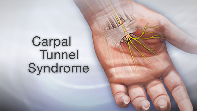 <div class=media-desc><strong>Carpal tunnel syndrome</strong><p>Typing all day on a computer keyboard can be tough on your wrists. If you type for hours at a time, day after day, eventually you may really start to feel some discomfort. The numbness, pain, and tingling you feel in your hands and wrists may be carpal tunnel syndrome, and it can have such a big effect on your life that you may eventually need surgery to treat it. Doing any repetitive motion with your hands, whether it's typing, sewing, driving, or writing, can cause carpal tunnel syndrome. The condition gets its name from an area in your wrist called the carpal tunnel. Running through this tunnel is the median nerve, which sends feeling to your palm and most of your fingers. When you do the same task over and over again, especially flexing and extending the wrist, you put pressure on the median nerve. Over time, it swells up inside the carpal tunnel until it's so tight in there that the nerve gets pinched. The classic symptoms of carpal tunnel syndrome are numbness and tingling in your hand, including the thumb, index, middle, and half of the ring finger. The discomfort is usually worse at night. And anytime you may not be able to grip things as tightly in the affected hand, and you can feel pain that may stretch all the way from the wrist to your elbow. Your doctor can run tests on your hand to confirm that your numbness, weakness, and pain are due to carpal tunnel. You may also have nerve conduction studies, or tests of the muscles. If you're feeling a lot of discomfort from carpal tunnel wearing a wrist splint especially at night could help. In addition, short term oral or injected glucocorticoid medications can help by reducing swelling. Studies have also shown some benefit from physical or occupational therapy techniques, and yoga. About half of the people with carpal tunnel though will eventually need a procedure called carpal tunnel release to lift pressure off the pinched nerve. Surgery is a mo