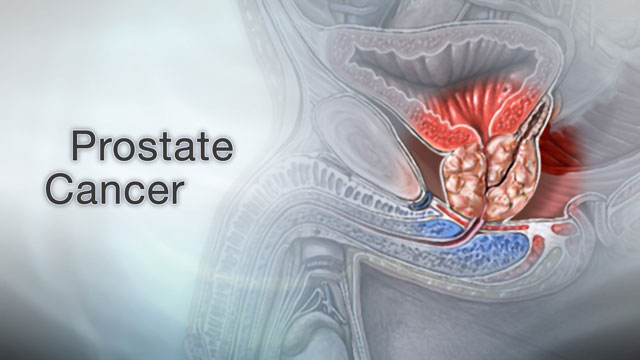 <div class=media-desc><strong>Prostate cancer</strong><p>As men get older, they have a lot of new worries to deal with, from hair loss, weight gain, perhaps even erectile dysfunction. In addition, cancer is one of the biggest concerns that older men face, especially prostate cancer, which is the leading cause of cancer death in men over 75.Younger men may not be very familiar with their prostate, the walnut-shaped gland that wraps around the urethra, the tube that carries urine out of the body. But as they get older, the prostate can start to cause problems. Men over the age of 60 are at increased risk for prostate cancer, especially if they're of African descent, they have a father or brother with the disease, or they eat a lot of burgers and processed meats in their daily diet. It can be hard to pinpoint prostate cancer symptoms, because they usually start late in the disease and they can mimic symptoms of a benign, enlarged prostate, which is also more common in older men. Symptoms like a slow urine stream, dribbling, blood in the urine, or straining while urinating can be signs of either condition. An enlarged prostate can also confuse the results of a PSA test, which is used to screen for prostate cancer.So, if your doctor thinks you might have prostate cancer, you may need a biopsy, which is a procedure that removes a small piece of prostate tissue and sends it to the lab to check for cancer. Then a scoring system called the Gleason grade is used to tell how fast your cancer might spread. Your Gleason grade will help decide what treatment you get.Early-stage prostate cancers that haven't spread are often removed with surgery, and then treated with radiation therapy to kill any remaining cancer cells. Prostate cancer surgery may affect your ability to have sex and control urine, so talk about these issues with your doctor before you have the procedure.Because prostate cancer tends to grow very slowly, your doctor may want to just monitor you with PSA tests and 