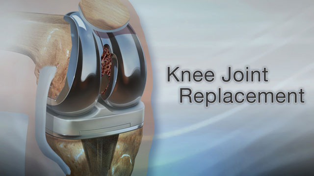 Knee Joint Replacement Your Knee Has Been Hurting For A