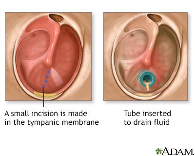 ears in adult Getting tubes