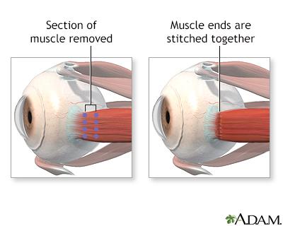 Eye muscle repair