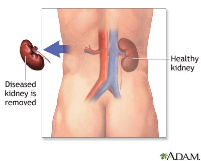 Kidney removal