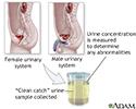Urine concentration test