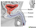 Prostatectomy - series - Normal anatomy