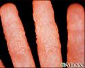 Dermatitis, reaction to tinea