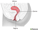 Cervical dysplasia - series