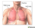 Pulmonary lobectomy - series - Normal anatomy