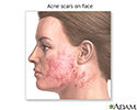 Skin smoothing surgery - series - Indication