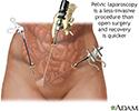 Pelvic laparoscopy
