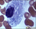 Gaucher cell - photomicrograph #2
