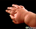Polydactyly - an infant's hand