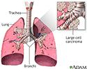 Non-small cell carcinoma