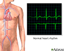 Normal heart rhythm