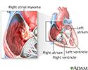 Right atrial myxoma