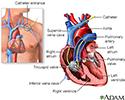 Swan Ganz catheterization