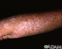 Actinic keratosis on the arm