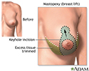 Breast lift (mastopexy) - series