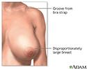 Breast reduction (mammoplasty) - series
