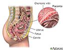 Chorionic villus sampling - normal anatomy