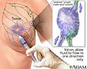 Sentinel node biopsy