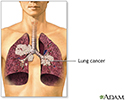 Secondhand smoke and lung cancer