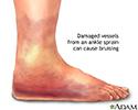 Ankle sprain swelling