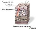 Hair follicle sebaceous gland