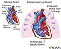 Eisenmenger syndrome (or complex)