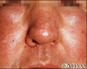 Edema - central on the face