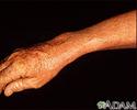 Lentigo - solar with erythema on the arm