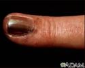 Skin cancer, melanoma on the fingernail