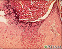 Molluscum - microscopic appearance