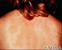 Tinea versicolor on the back