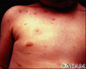 Urticaria pigmentosa on the chest