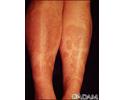 Granuloma annulare on the legs