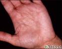 Hyperlinearity in atopic dermatitis
