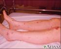 Meningococcemia associated purpura