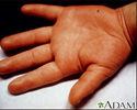 Kawasaki disease - edema of the hand