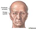 Forehead lift  - series