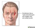 Ruptured intracranial aneurysm