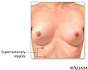 Supernumerary nipples