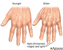Aging changes in nails